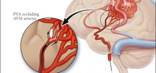 Arteriovenous Malformation