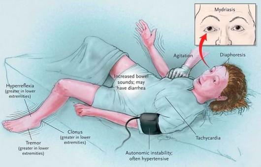 neuroleptic malignant syndrome - nursing crib, Skeleton