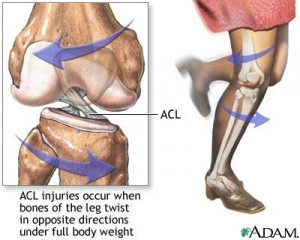 ACL Injury 300x240 Anterior Cruciate Ligament Injuries