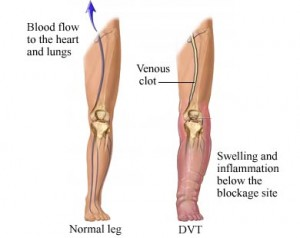Deep Vein Thrombosis image 300x238 Pathophysiology of Deep Vein Thrombosis