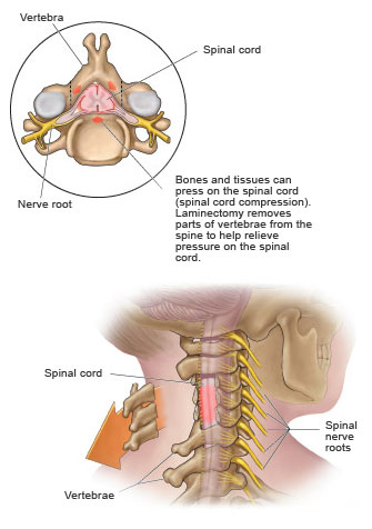 Spinal Cord Compression Oncologic Emergencies: Spinal Cord Compression