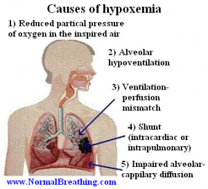 hypoxemia 300x274 Chronic Hypoxemia in Pediatrics