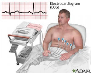 ECG 300x240 Basic ECG Interpretation Made Easy