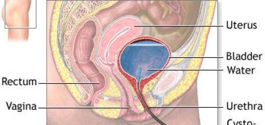 cystoscopy
