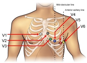 ecg-lead-placement