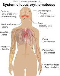 SYSTEMIC LUPUS ERYTHMATOUS (SLE)