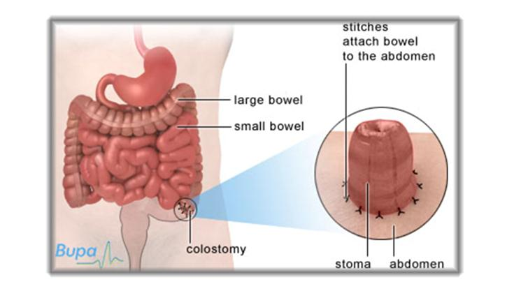 Fastrack bags for school - Changing Colostomy Bag How To Change Colostomy Bag