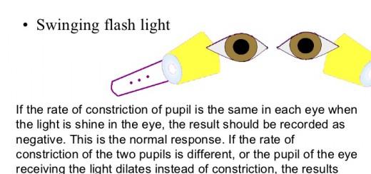 nursing-assessment-of-eye-part1-47-728