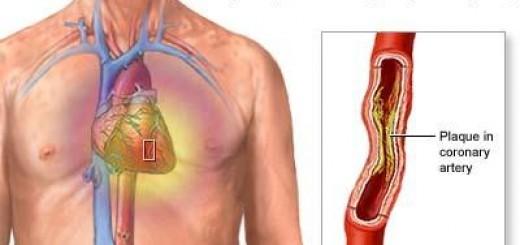 stable-angina