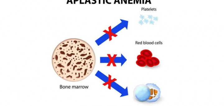 causes-of-aplastic-anemia-and-mds