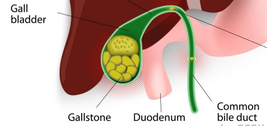 gall-bladder-with-gallstones