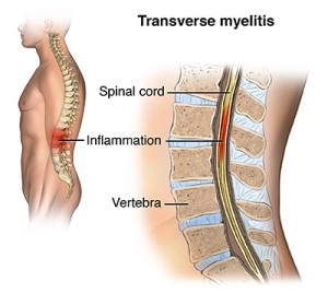 Lateral view of spine and vertebrae; SOURCE: iConsult; male_skeleton_lat_L_layers.psd