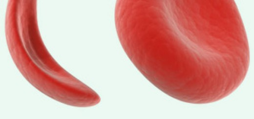 Sickle-Cell-Disease
