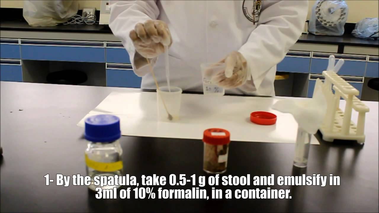 Nursing How To S Stool Specimen Collection Stool