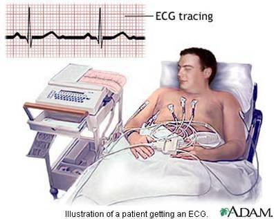 electrocardiogram machine cost