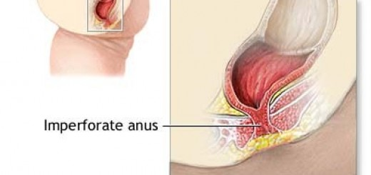 ImperforateAnus.jpg