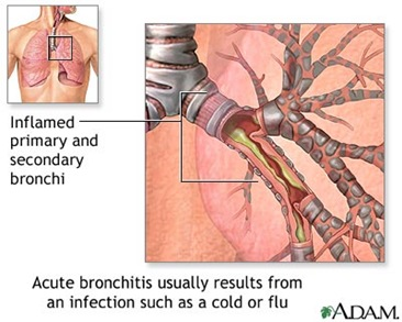acutebronchitis thumb1 Acute Bronchitis