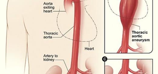 aneurysm-aortic.jpg