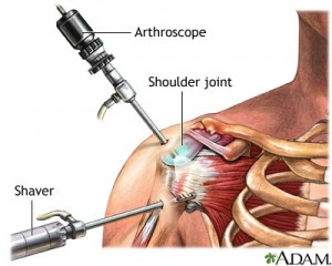 arthroscopy 300x240 Arthroscopy