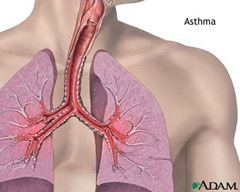 asthmatic patient thumb Asthma Case Study