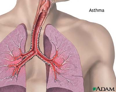 case study on asthma of a child Asthma case study by daisy jane  provide child and family teaching assist the child and family to name signs and symptoms of an acute attack and appropriate.