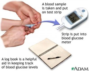blood glucose test from pennmedicine.org  300x240 Blood Glucose Monitoring