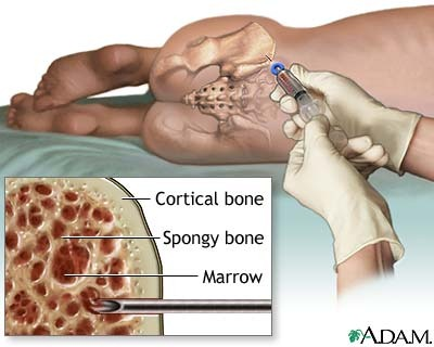 bone marrow aspiration and biopsy - nursing crib, Skeleton