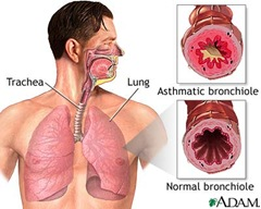 bronchial asthma thumb Nursing Care Plan   Bronchial Asthma