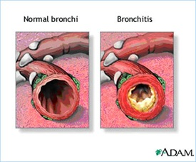 bronchitis thumb Chronic Obstructive Pulmonary Disorder (COPD) Case Study