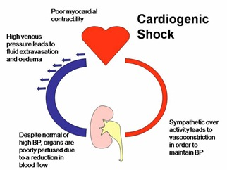cardiogenicshock thumb Cardiogenic Shock