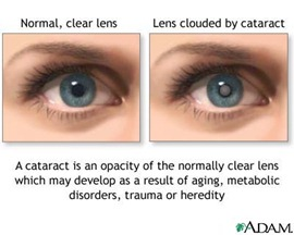 cataract thumb Cataract