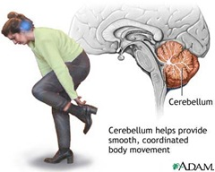 cerebellum thumb Schizophrenia Case Study