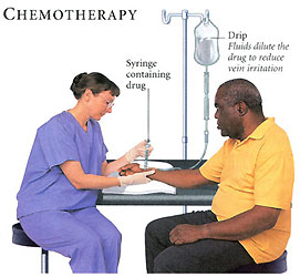 chemotherapy side effects essay The doctor's wife in the chemo chair by peter b bach the chemo up until that point had the predicted side effects his essays, about his wife.