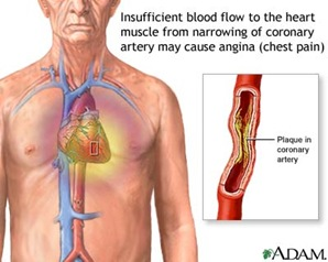 chestpain thumb Coronary Artery Disease