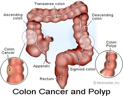 colon cancer thumb Nursing Care Plan   Colon Cancer (Colorectal Cancer)