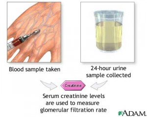 creatinine 300x240 Serum Creatinine Normal Values