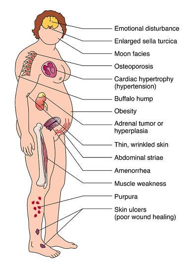 cushings-syndrome2