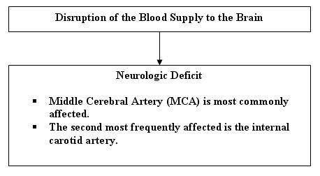 cva cerebrovascular accident case study In this case study, which of the following factors may have a history of cerebrovascular disease b nihss score c hypertension d advanced age 21.