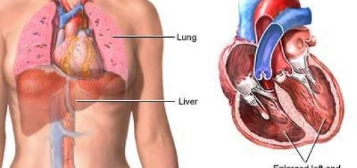dilatedcardiomyopathy.jpg