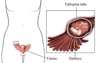 ectopic-pregnancy