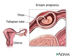 ectopicpregnancy thumb1 Pregnancy Complications