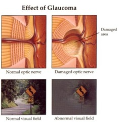effect of glaucoma