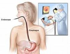 Esophagoscopy