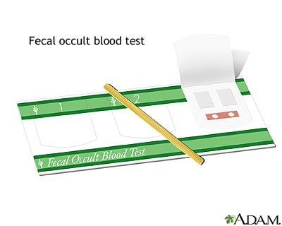 fecal occult blood test plant based diet