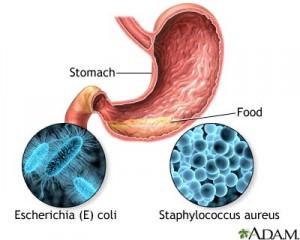 staphylococcal aureus