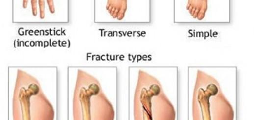 fracturetypesimage.jpg