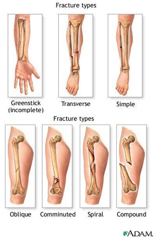 Different Types of Hand Fractures