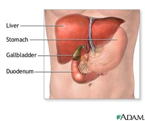 gallbladder removal series thumb Nursing Care Plan   Cholecystectomy (Gallbladder Removal)