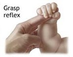 grasp reflex thumb Newborn Reflexes