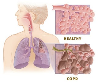 healthyvscopdlungs thumb Chronic Obstructive Pulmonary Disorder (COPD) Case Study